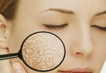 Home Remedies For Dry Skin in Winter