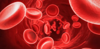 Anemia, Iron, Health News